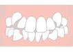 叢生(そうせい)八重歯、乱ぐい