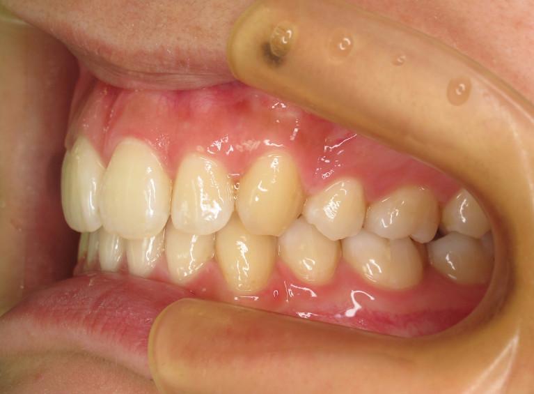 出っ歯の症例(治療後)