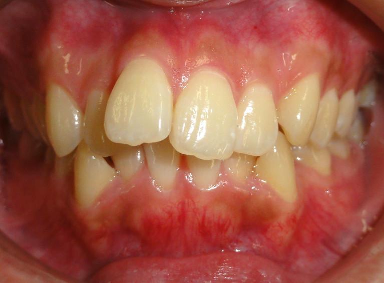 前歯出っ歯の症例