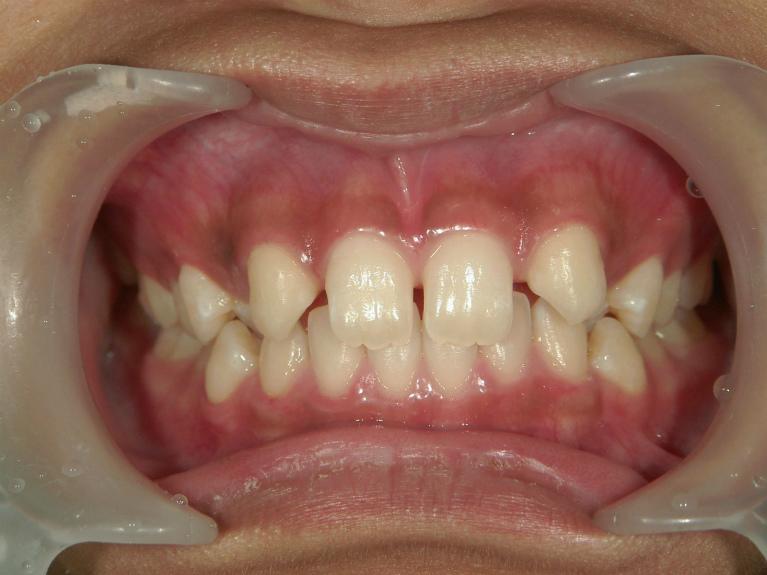 すきっ歯の症例(治療前)