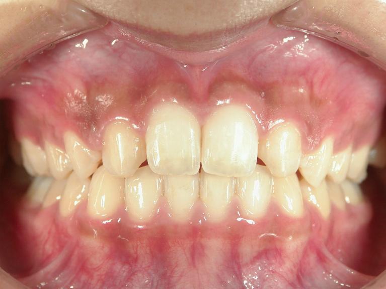 すきっ歯の症例(治療後)