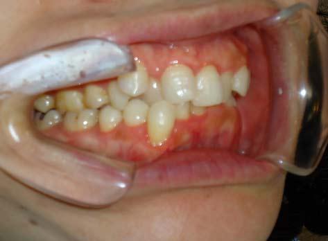 八重歯の症例(治療前)