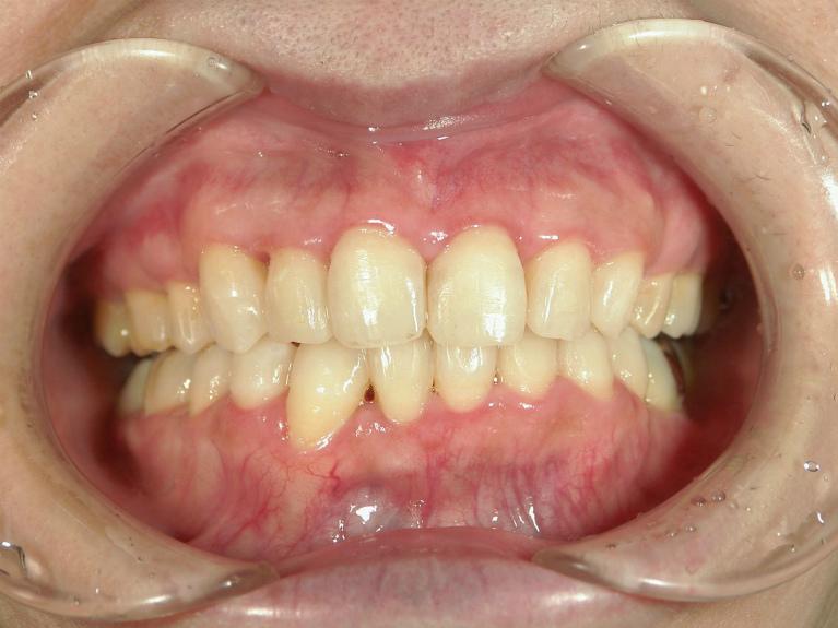 八重歯の症例(治療後)