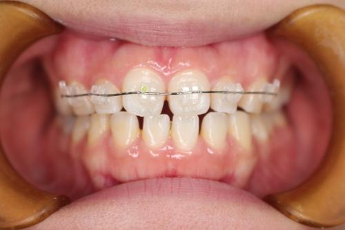 クリア前歯