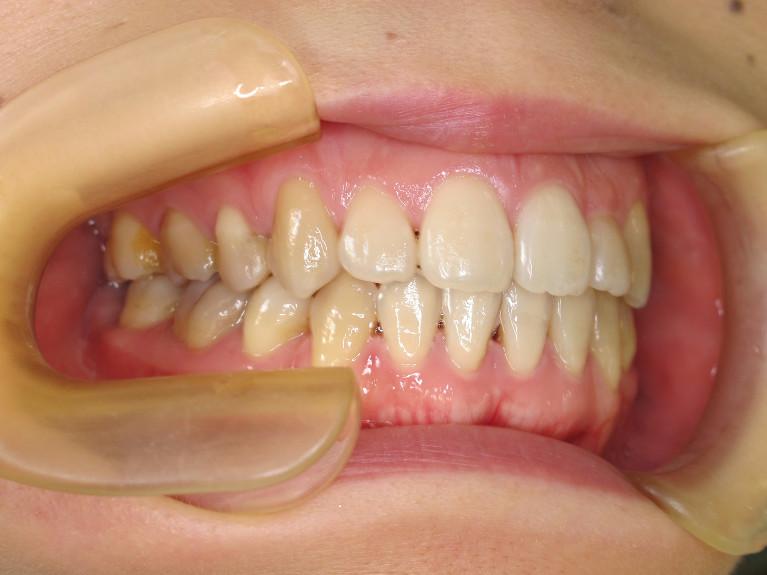 開咬の症例(治療後)