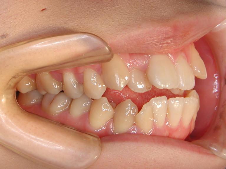 開咬の症例(治療前)